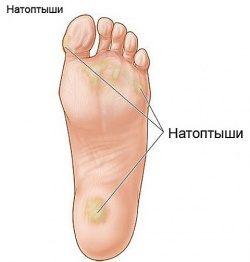 3_2_kak_izbavitsy_ot_natoptuchey-2730067