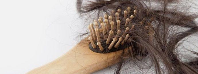 alopeciya1-7255666