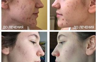 lechenie-akne-ugrevoj-sypi-u-podrostkov-2