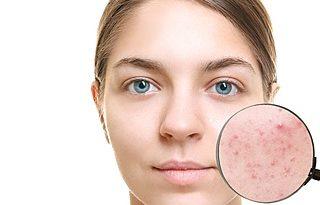 sredstva-ot-akne-i-ugrej-rejting-i-obzor-top-4-effektivnoj-kosmetiki-v-apteke-kremy-geli-2